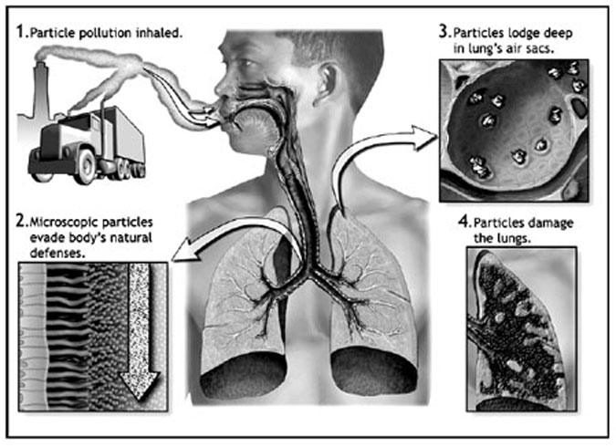 particle-inhalation